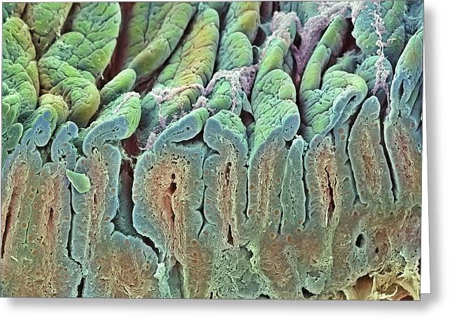 Duodenum Greeting Cards - Intestinal Lining, Sem Greeting Card by Steve Gschmeissner