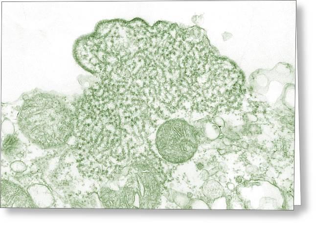 Terrorism Greeting Cards - Nipah Virus Greeting Card by Science Source