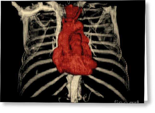 Color Enhanced Greeting Cards - 3d Ct Reconstruction Of Heart Greeting Card by Medical Body Scans