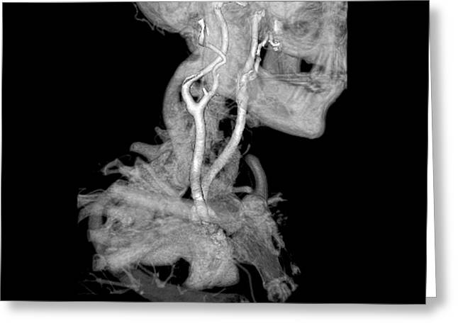 Ct Angiogram Greeting Cards - 3d Cta Of Carotid Arteries Greeting Card by Medical Body Scans