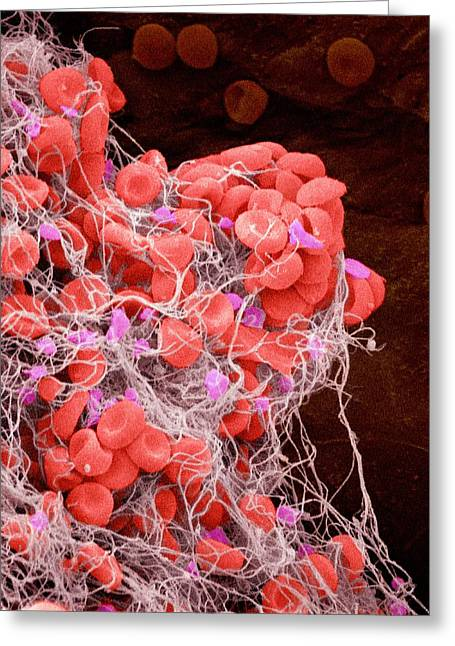 Scanning Electron Micrograph Greeting Cards - Blood Clot, Sem Greeting Card by Susumu Nishinaga