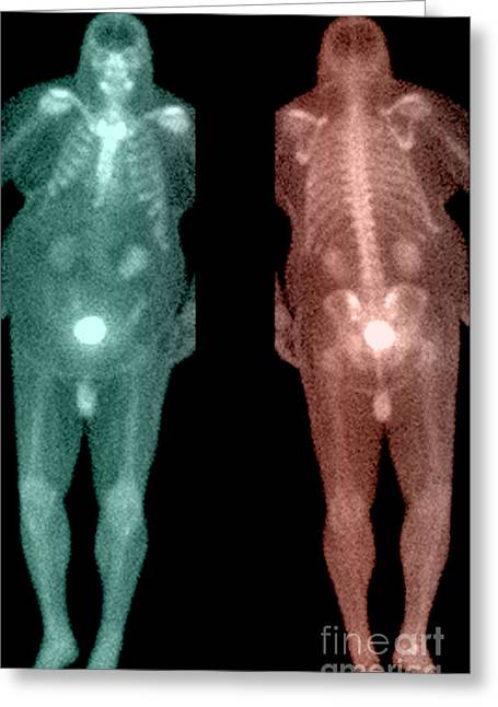 Isotopes Greeting Cards - Bone Scan Greeting Card by Medical Body Scans