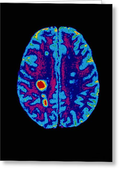 Multiple Sclerosis Greeting Cards - Col. Mri Scan Of A Brain With Multiple Sclerosis Greeting Card by