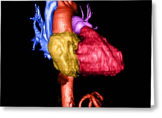 3-dimensional Greeting Cards - Color Enhanced 3d Cta Of Heart Greeting Card by Medical Body Scans