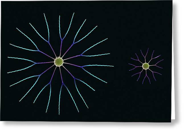 Diatom Algae, Sem Greeting Card by Steve Gschmeissner