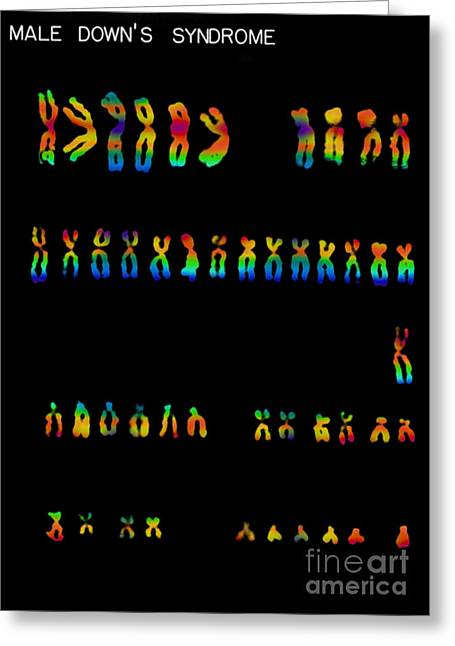 Downs Syndrome Karyotype Greeting Card by Omikron