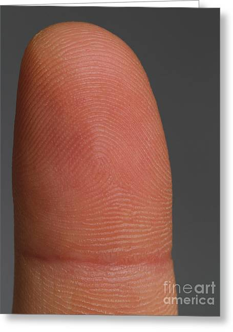Fingertips Greeting Cards - Fingertip Showing Fingerprint Ridges Greeting Card by Photo Researchers, Inc.