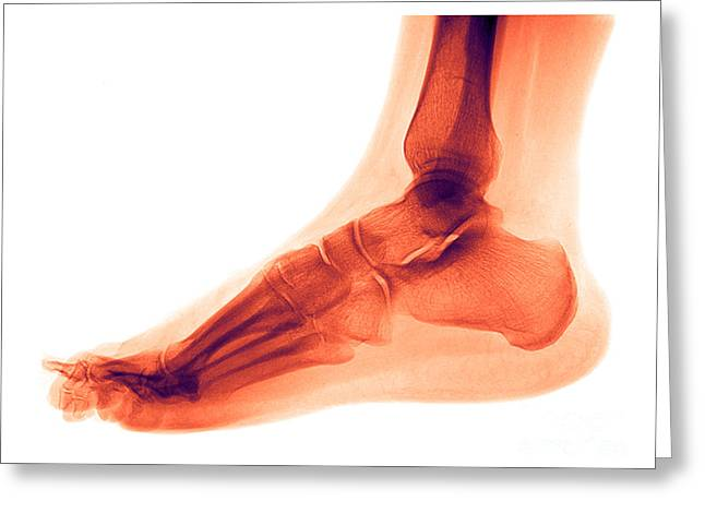 Medical Medical Imaging Greeting Cards - Foot Greeting Card by Medical Body Scans