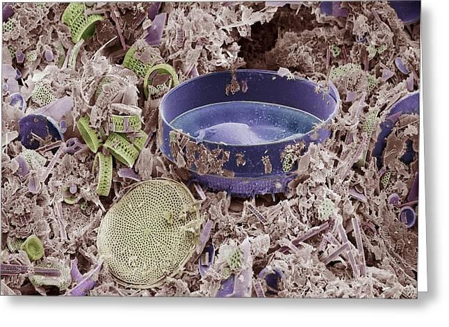 Diatoms Photographs Greeting Cards - Fossilised Diatoms, Sem Greeting Card by Steve Gschmeissner