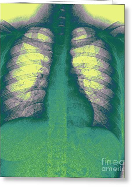 Chest Greeting Cards - Human Chest X-ray Greeting Card by Medical Body Scans