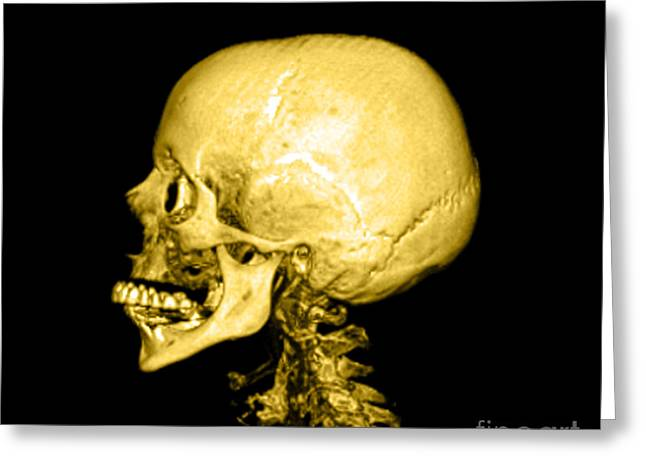 Temporal Bone Greeting Cards - Human Skull Greeting Card by Medical Body Scans