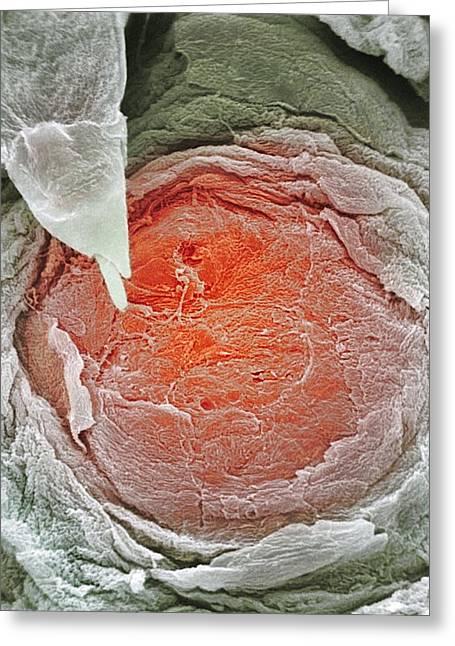 Biology Greeting Cards - Human Tongue Papillae, Sem Greeting Card by