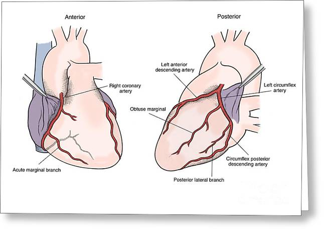 Posterior. Greeting Cards - Illustration Of Coronary Arteries Greeting Card by Science Source