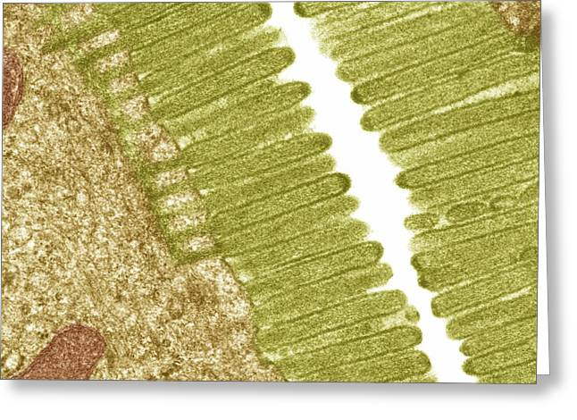 Gi Greeting Cards - Intestinal Microvilli, Tem Greeting Card by Steve Gschmeissner