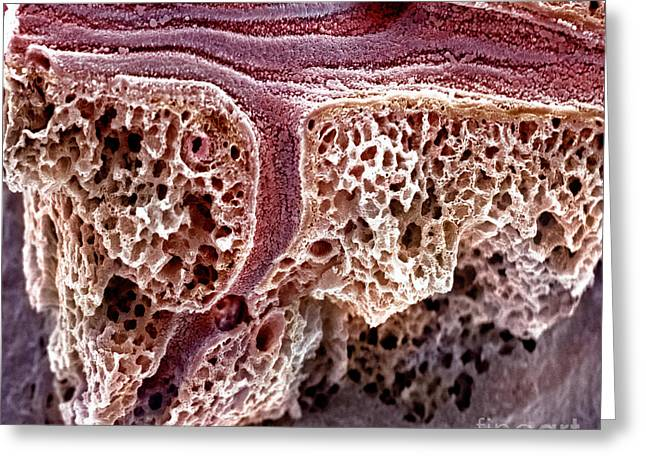 Sem Greeting Cards - Mouse Lung, Sem Greeting Card by Science Source