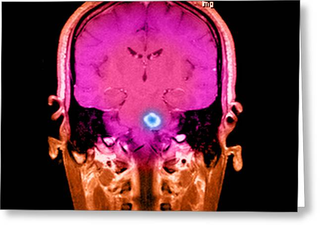 Color Enhanced Greeting Cards - Mri Of Acute Ms Greeting Card by Medical Body Scans