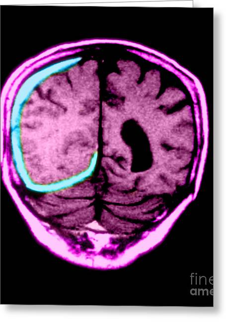 Color Enhanced Greeting Cards - Mri Of Head Trauma Greeting Card by Medical Body Scans
