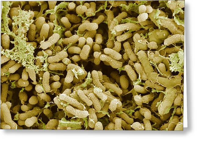 Nitrogen-fixing Bacteria, Sem Greeting Card by Steve Gschmeissner