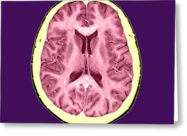 Color Enhanced Greeting Cards - Normal Cross Sectional Mri Of The Brain Greeting Card by Medical Body Scans