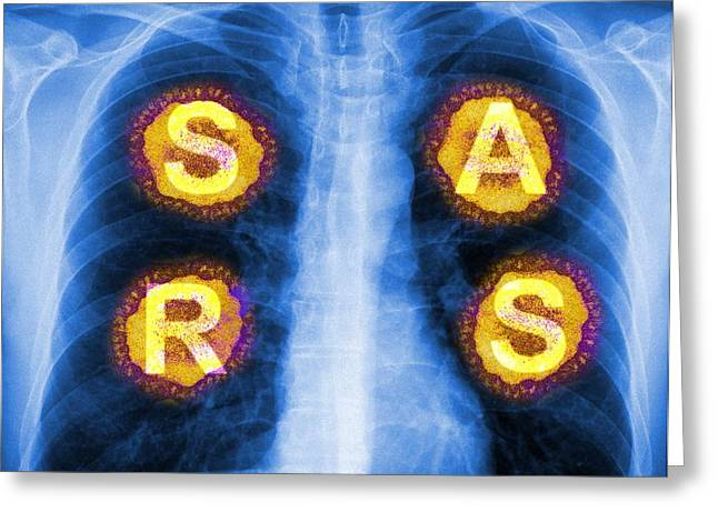 Biology Greeting Cards - Severe Acute Respiratory Syndrome (sars) Greeting Card by Pasieka