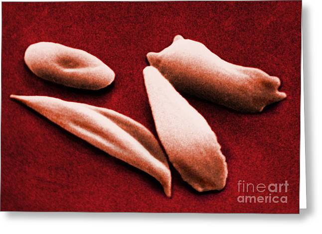 Hemoglobin Greeting Cards - Sickle Red Blood Cells Greeting Card by Omikron