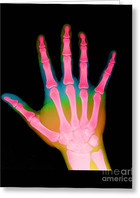 Color Enhanced Greeting Cards - X-ray Of A Hand Greeting Card by Medical Body Scans