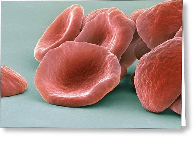 Biconcave Greeting Cards - Red Blood Cells, Sem Greeting Card by Steve Gschmeissner