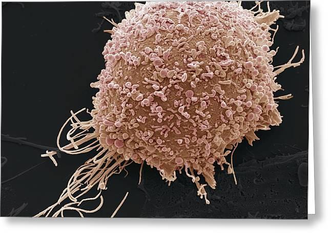 Cervical Greeting Cards - Cervical Cancer Cell, Sem Greeting Card by Steve Gschmeissner