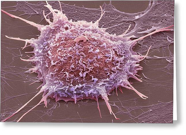 Scanning Electron Micrograph Greeting Cards - Cervical Cancer Cell, Sem Greeting Card by Steve Gschmeissner