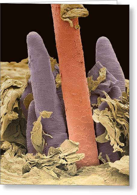 Eyelash Greeting Cards - Eyelash Mite Tails, Sem Greeting Card by Steve Gschmeissner