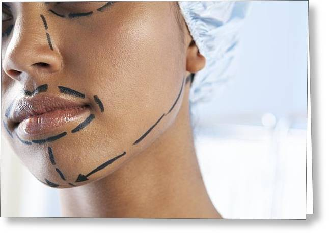 Facelift Surgery Markings Greeting Card by Adam Gault