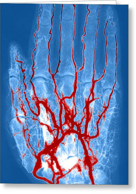 Angiogram Greeting Cards - Hand Arteriogram Greeting Card by Science Source