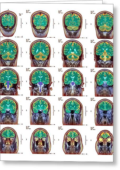 False Front Greeting Cards - Healthy Brain, Mri Scans Greeting Card by