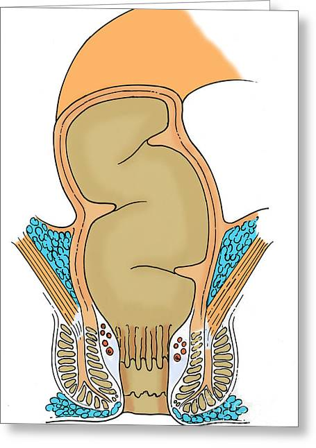 Rectum Greeting Cards - Illustration Of Rectum Greeting Card by Science Source