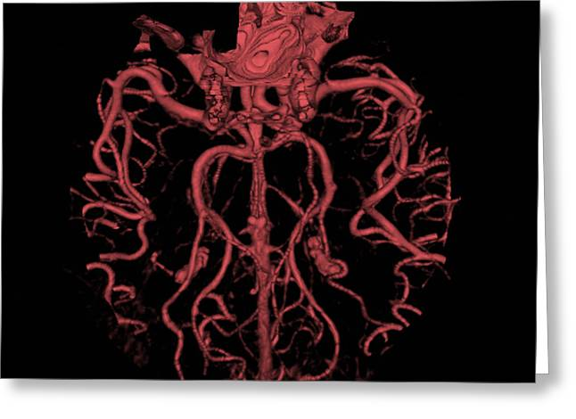 Ct Angiogram Greeting Cards - Intracranial Ct Angiogram Greeting Card by Medical Body Scans