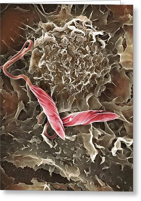 Single Celled Organism Greeting Cards - Macrophage Attacking A Foreign Body, Sem Greeting Card by