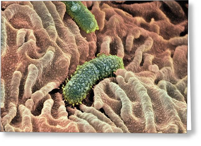 Lining Greeting Cards - Oesophagus Lining, Sem Greeting Card by Steve Gschmeissner