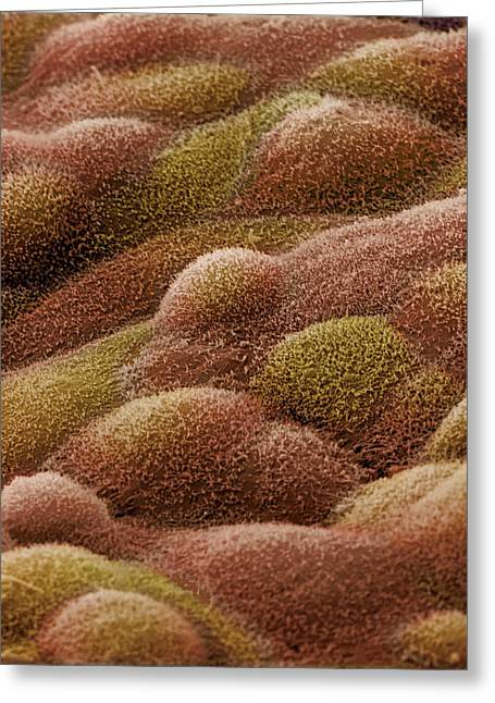 Stein Greeting Cards - Ovarian Cyst Lining, Sem Greeting Card by Steve Gschmeissner