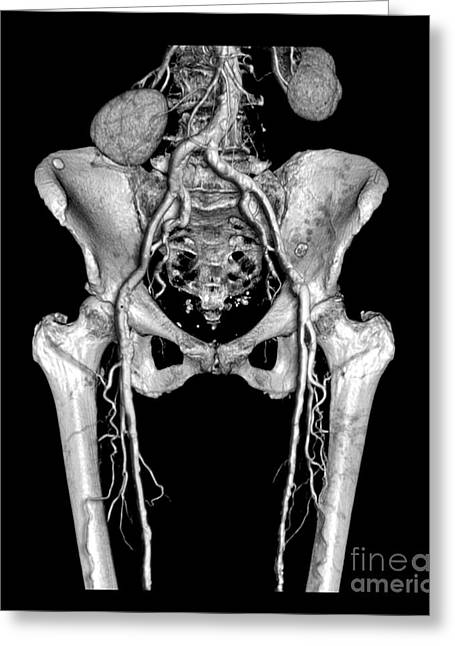 Pelvis Greeting Cards - Pelvis And Upper Legs Greeting Card by Medical Body Scans
