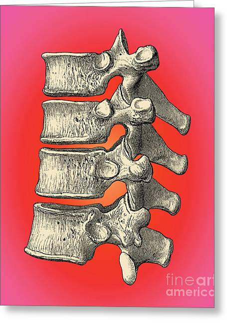 Quartet Greeting Cards - Vertebrae Greeting Card by Science Source