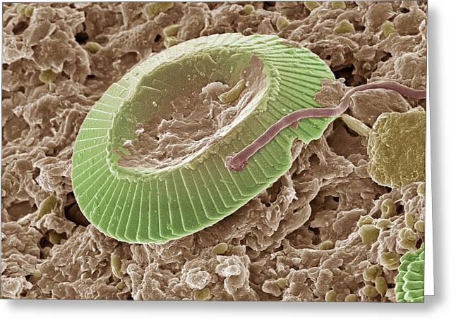 Diatom Alga, Sem Greeting Card by Steve Gschmeissner
