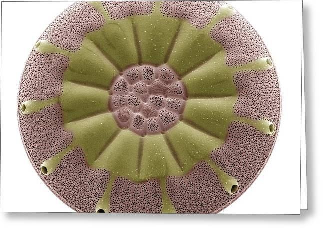 Phytoplankton Greeting Cards - Diatom, Sem Greeting Card by Steve Gschmeissner