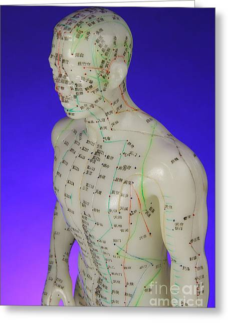 Plastic Models Greeting Cards - Acupuncture Model Greeting Card by Photo Researchers, Inc.