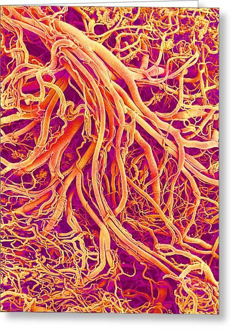 Circulatory System Greeting Cards - Blood Vessels, Sem Greeting Card by Susumu Nishinaga