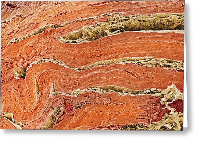 Connective Tissue Greeting Cards - Cardiac Muscle, Sem Greeting Card by Steve Gschmeissner