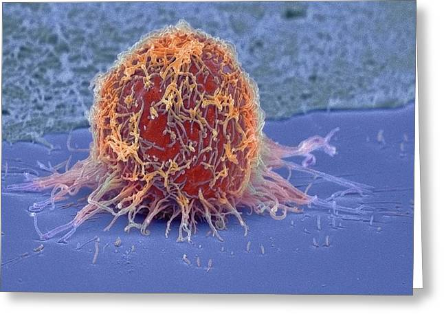 Pseudopodia Greeting Cards - Cervical Cancer Cell, Sem Greeting Card by Steve Gschmeissner