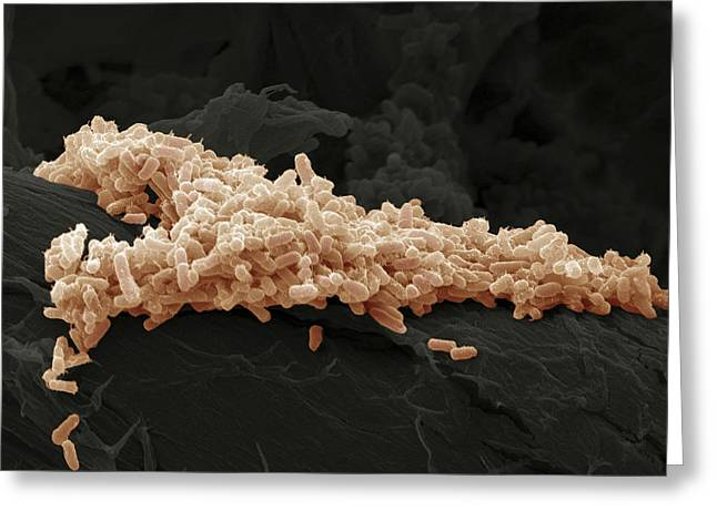 Microbiological Greeting Cards - E. Coli Bacteria, Sem Greeting Card by Steve Gschmeissner
