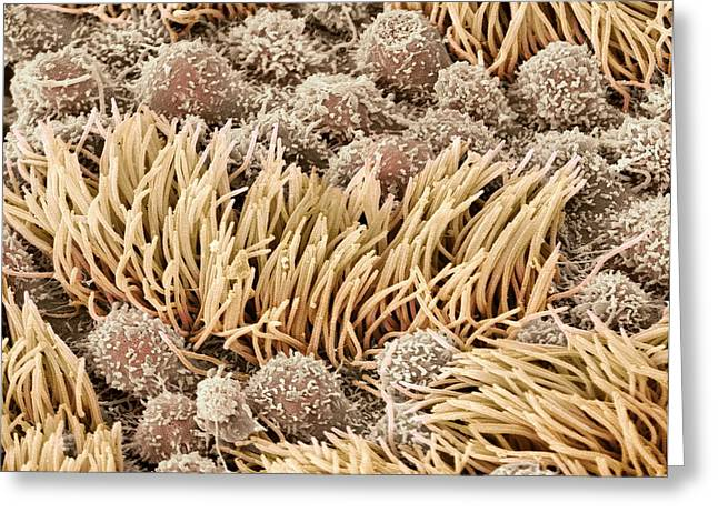 Scanning Electron Micrograph Greeting Cards - Fallopian Tube, Sem Greeting Card by Steve Gschmeissner