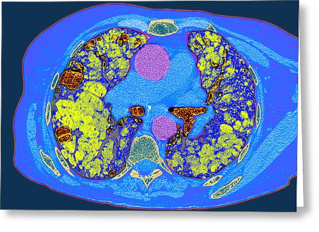 Pulmonary Greeting Cards - Lung Fibrosis, Ct Scan Greeting Card by Du Cane Medical Imaging Ltd