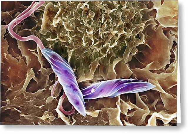Macrophage Attacking A Foreign Body, Sem Greeting Card by